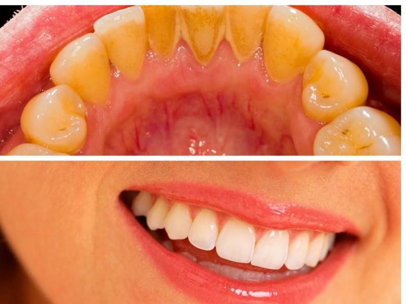 Hanya Guna Garam Untuk Bersihkan Plak Gigi Ibu Ibu Cuba Praktik 4